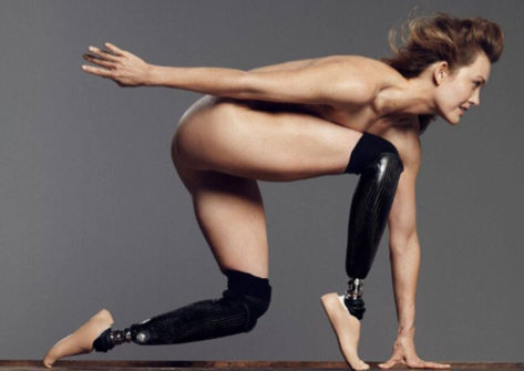 Amy Purdy is 2014 Paralympic Bronze Medalist. Photo courtesy ESPN The Magazine